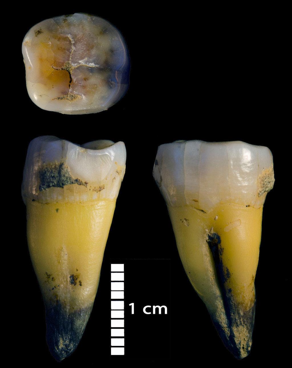 在主要地区的Bacho Kiro洞穴中发现的现代人类的第二下臼齿,与最初的旧石器时代石器相关。来自该个体的全基因组数据表明,他的尼安德特人祖先不到六代。在洞穴的Niche 1区的第一层中发现了同一个人的另一个人类碎片。.jpg