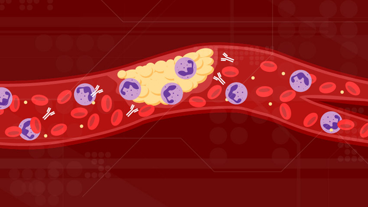 插图显示带有血小板凝块的血管(黄色)。红细胞(红色),中性粒细胞(紫色)和称为aPL的Y形抗体(白色)在血管中循环.png