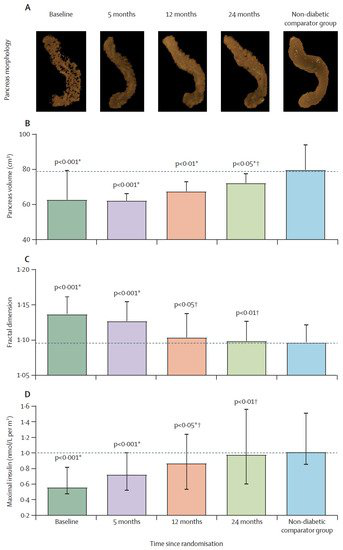 2型糖尿病缓解2年后胰腺形态和β细胞功能的恢复。.png